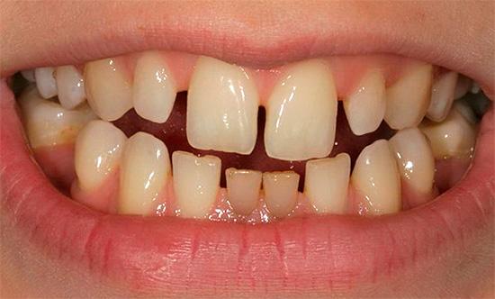 Причиной появления трем (промежутков) может явиться микродентия - малые размеры отдельных зубов в ряду.