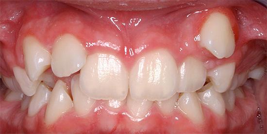 Иногда зуб может прорезаться в нетипичном для него месте, что в итоге приводит к формированию дефекта прикуса.
