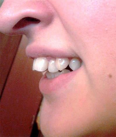 Пример дистального прикуса, когда верхние резцы наклонены в сторону губы.