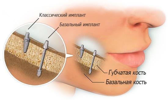 Базальные импланты устанавливаются в плотную базальную кость челюсти.