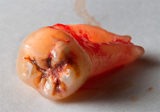 Нередко стоматолог-хирург после удаления зуба сам же устанавливает и имплант.