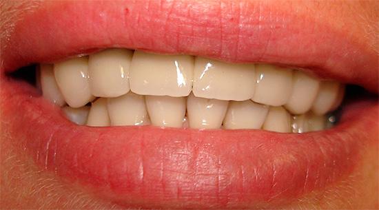 При должном уходе за полостью рта металлокерамика может прослужить вам более 10 лет, а возможно, и всю жизнь.
