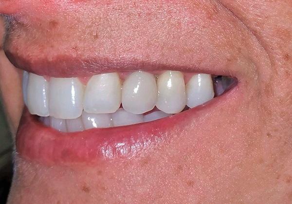 Как бы не спорили о плюсах и минусах базальной имплантации, во многих случаях она действительно является хорошим способом быстро вернуть себе красивую улыбку.