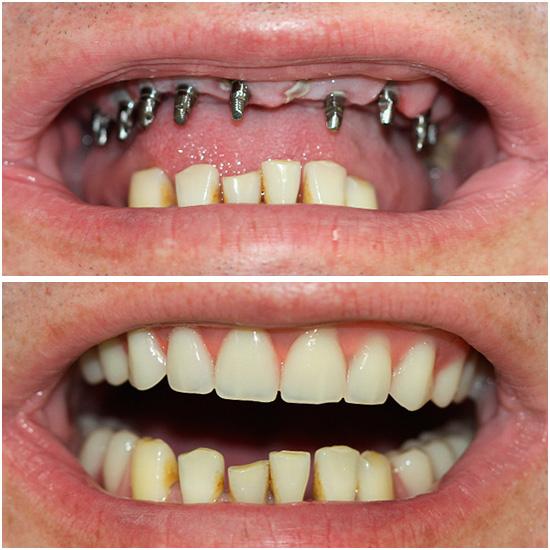 У базальной имплантации действительно немало плюсов - например, она позволяет очень быстро вернуть человеку красивую улыбку.