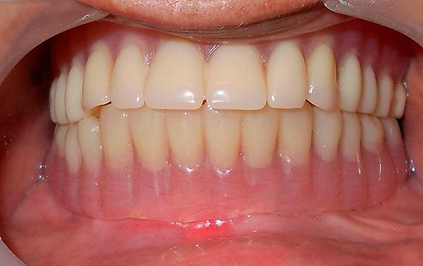 На импланты установлен протез - в итоге эстетика и функциональность зубного ряда восстановлены.