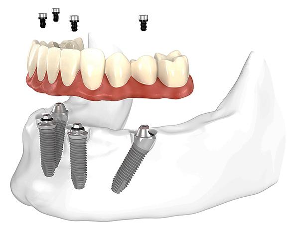 На картинке схематично показано протезирование зубов методом All-on-4 (на четырех имплантатах).