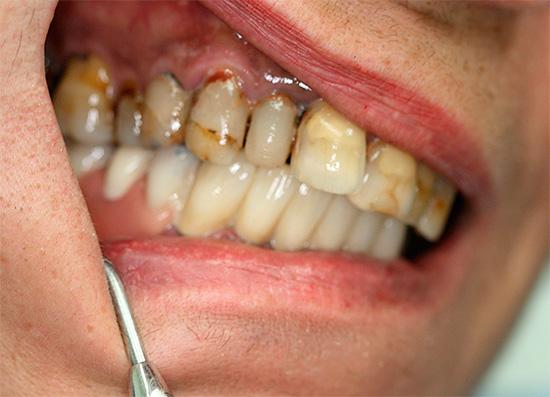 Перед процедурой состояние ротовой полости и челюсти пациента тщательно обследуется.
