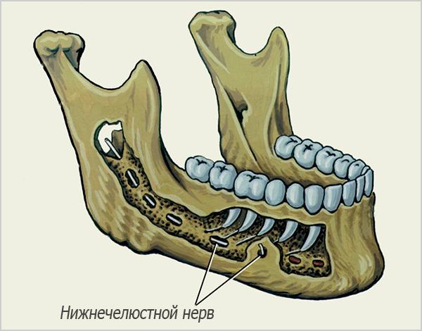 На картинке показано прохождение нижнечелюстного нерва в нижней челюсти.