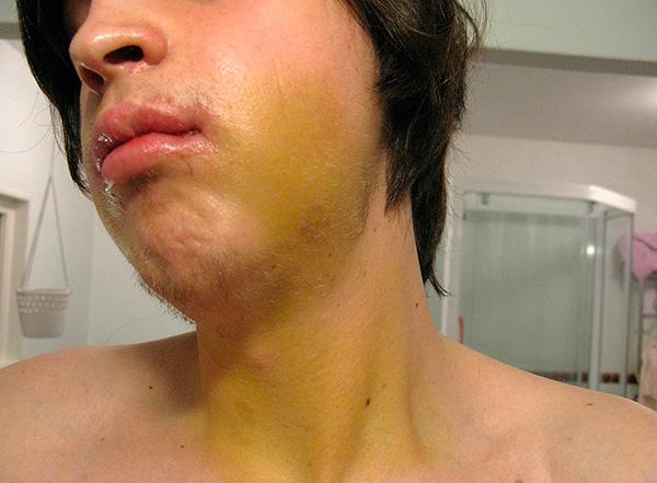 Иногда после установки имплантов на лице и даже шее может наблюдаться гематома.