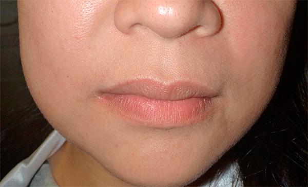Как правило, отек, возникающий сразу после установки зубных имплантов, проходит в течение нескольких часов или пары дней.