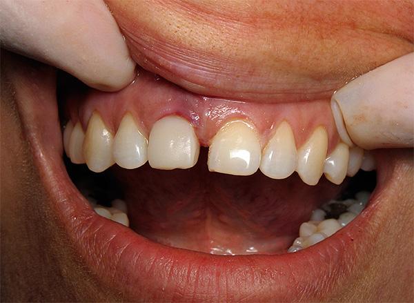 Поговорим о симптомах, которыми может сопровождаться процесс отторжения импланта зуба, и, главное, как снизить риск этого неприятного явления...
