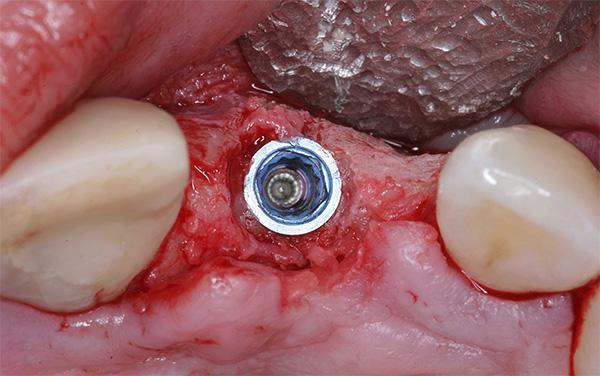 В восстановленную кость вживлен имплант