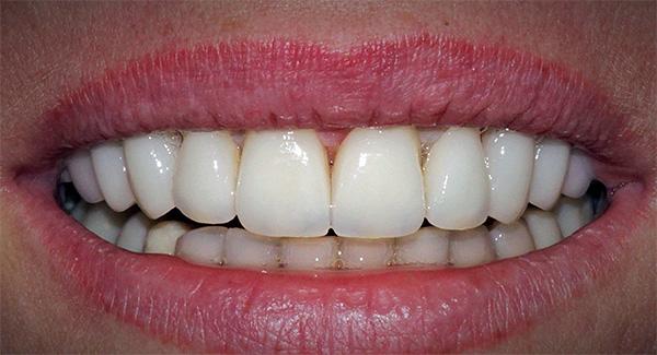 Есть несколько простых советов, которые позволят избежать многих проблем, связанных с отторжением имплантов зубов...