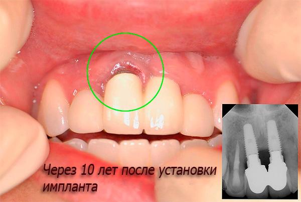 Что нужно есть после имплантации зубы