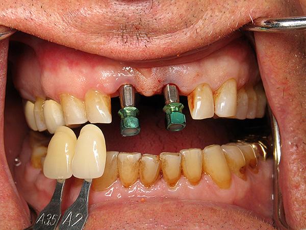 Пародонтит и пародонтоз действительно создают ряд сложностей для проведения имплантации зубов, но не все так безнадежно, как может показаться на первый взгляд...