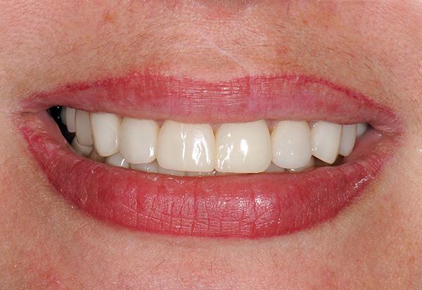 Итогом замены всех больных и отсутствующих зубов на импланты является красивая ровная улыбка и способность нормально жевать.