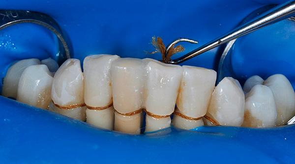 На фотографии показан пример шинирования зубов специальной нитью.