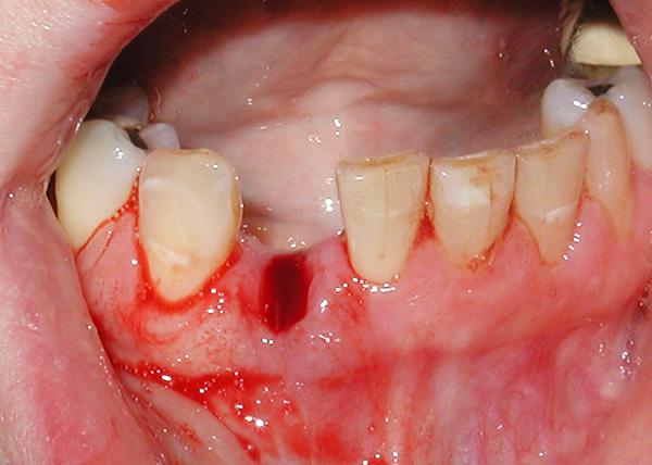 При пародонтите весьма опасно оставлять пустое место в зубном ряду без внимания...