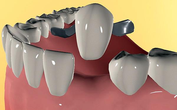 Даже после лечения пародонтита есть риск, что зубы станут подвижными и уже не смогут удерживать мостовидный протез.