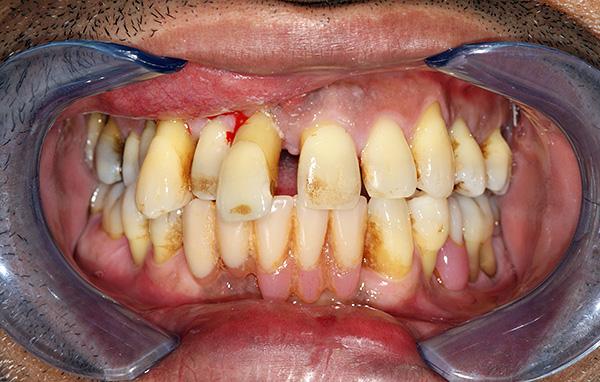 В зависимости от состояния зубов, индивидуальный план лечения может быть разным...