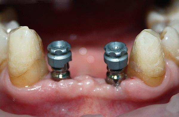 Сегодня существует несколько технологий имплантации, а также разные виды самих имплантов, отличающиеся по цене и качеству.