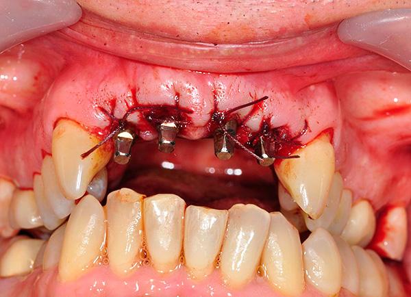 На фото показан пример установленных в верхнюю челюсть базальных имплантов.