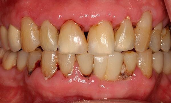 Пародонтит не только сопровождается весьма неприятными симптомами, но и приводит к активной убыли костной ткани челюсти.