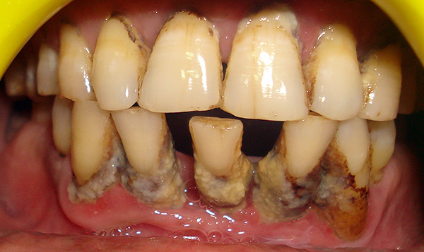 При тяжелых формах пародонтита все зубы подлежат удалению.