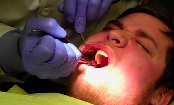 Если удаление зуба пройдет не совсем гладко, то врач может принять решение отказаться от одномоментной установки импланта.