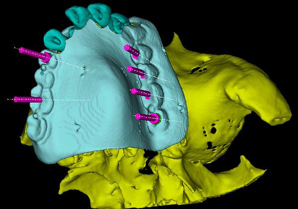 3D-моделирование при имплантации зубов позволяет значительно снизить вероятность врачебной ошибки.