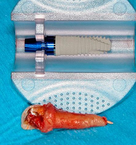При экспресс-имплантации зубной имплант устанавливается в лунку сразу же после процедуры удаления зуба.