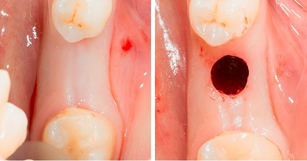 При так называемой безоперационной имплантации зубов все равно выполняется разрез десны - просто он круговой, а не продольный.