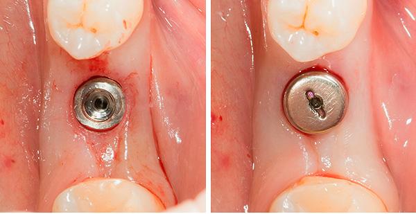 После установки импланта на него ставится формирователь десны.