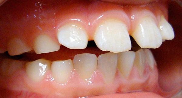 При открытом прикусе между зубами формируется саггитальная щель.