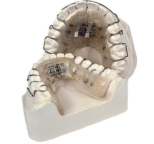 Съемный аппарат с винтом для расширения и контроля роста челюстей.