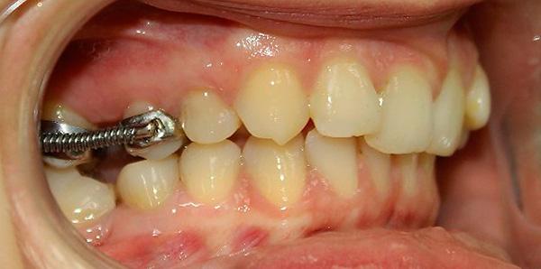 При коррекции дистального прикуса специальная брекет-система с помощью пружин помогает подвинуть верхние 6 и 7 зубы в заднее положение.