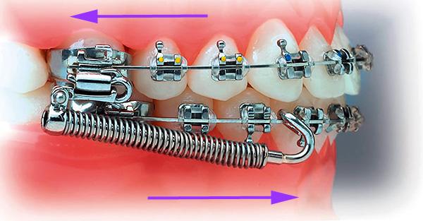 Разновидность аппарата Гербста - пружины выдвигают нижнюю челюсть вперед, а верхнюю смещают назад.