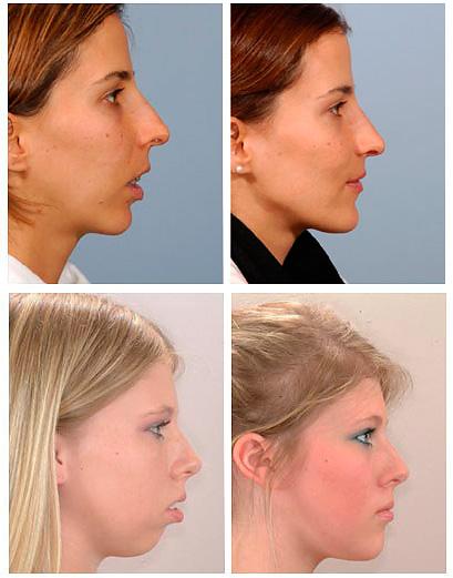На фотографиях видно, как может выглядеть профиль лица до и после исправления дистального прикуса.