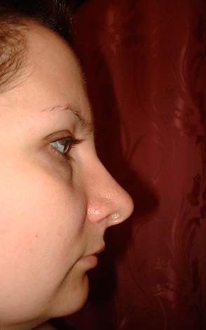 Пример так называемого птичьего лица, когда нижняя челюсть значительно смещена назад по отношению к верхней.