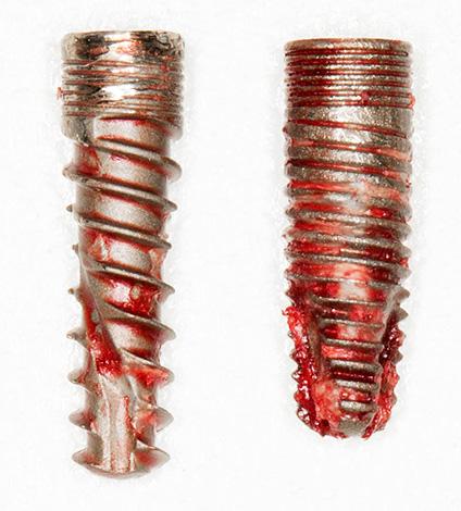 Удаленные из челюсти дентальные импланты