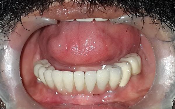 Пример восстановления зубного ряда на имплантах
