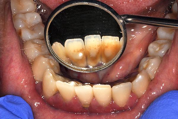 Скопление зубного налета и камня в дальнейшем может привести к пародонтиту и подвижности не только родных зубов, но и имплантов.