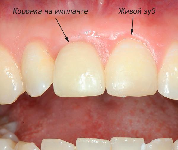 На этой фотографии можно посмотреть результат протезирования переднего зуба на импланте XiVE.