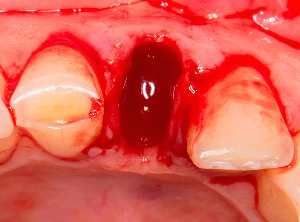 В отдельных случаях с использованием имплантов XiVE можно провести так называемую немедленную имплантацию, установив их в лунку только что удаленного зуба.