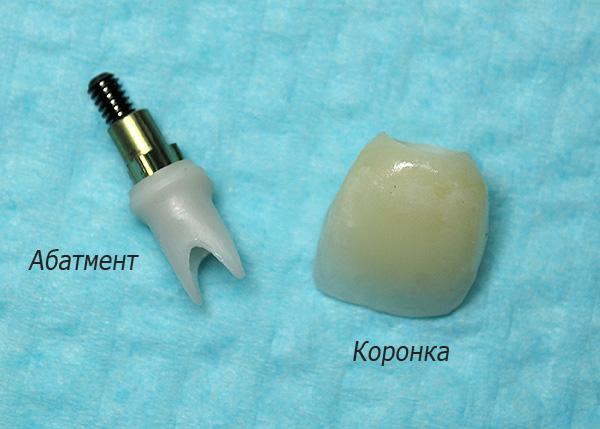 Существенный вклад в итоговую стоимость протезирования на имплантах вносят постоянный абатмент и коронка.