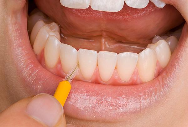 Вместо зубной нити полезно использовать интердентальные щетки-ершики.