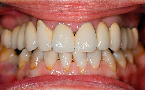 Если не уделять достаточного внимания гигиене полости рта, то срок службы зубных имплантов может быть весьма небольшим.
