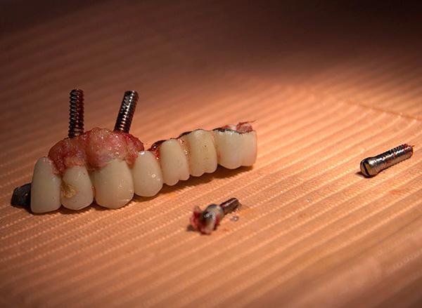 Чаще всего импланты отторгаются именно по причине ошибок, допущенных врачом в ходе операции.