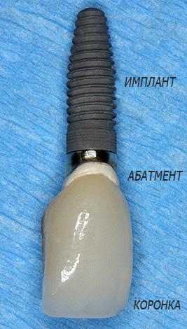 Устанавливаемая при имплантации конструкция включает в себя собственно имплант, а также абатмент и протез (коронку).