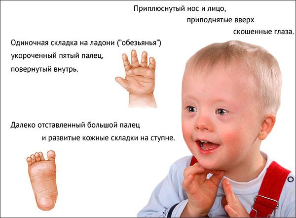 Признаки синдрома Дауна
